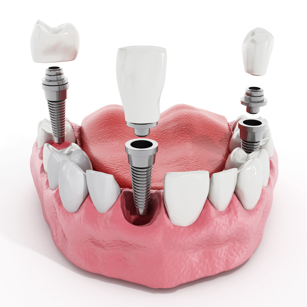 can an oral surgeon in fort lauderdale place dental implants
