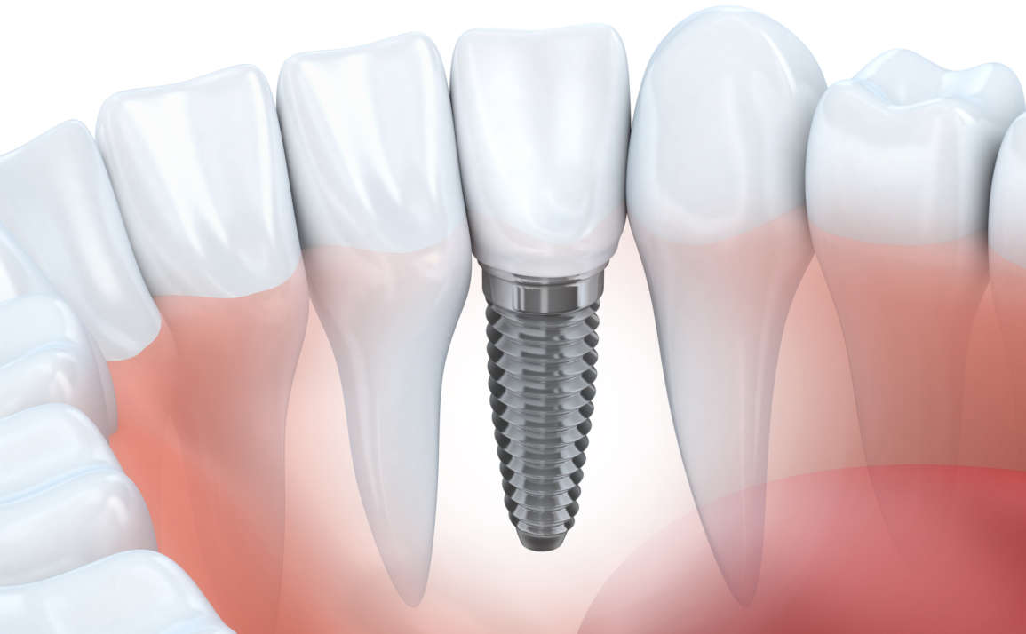 Dental Implants Fort Lauderdale | How Implants Work