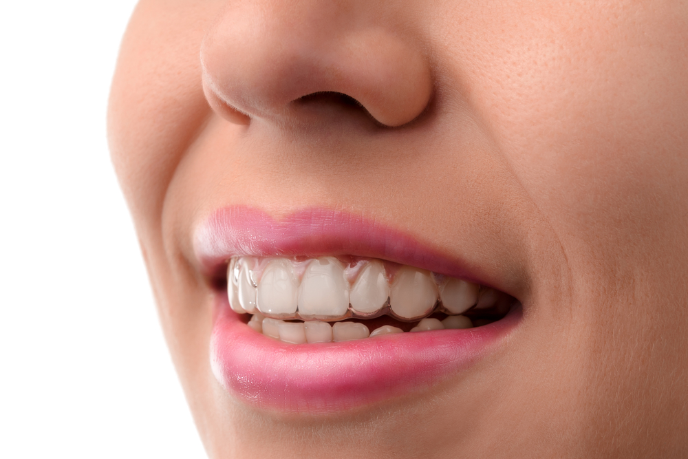 is invisalign in fort lauderdale better than braces
