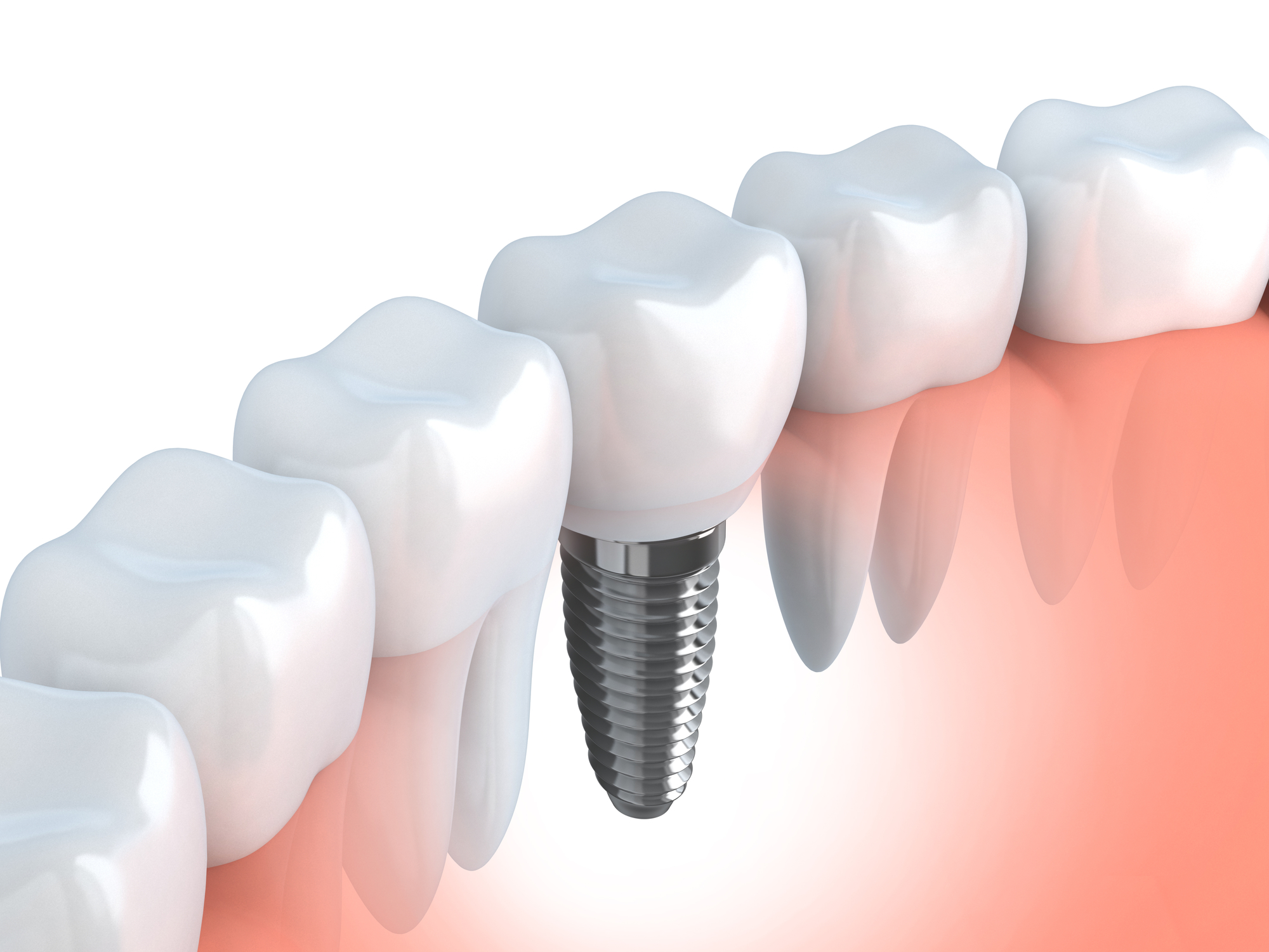 Where can I find the best dental implants in Fort Lauderdale?